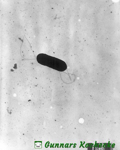 Listeria monocytogenes unter dem Mirkroskop  - Quelle: Elizabeth White [Public domain], via Wikimedia Commons